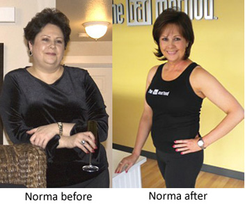 Norma Before And After